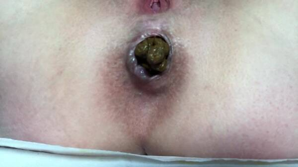 Extreme Scat - Welcome sausage - POV on Webcam [FullHD 1080p]