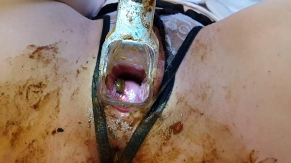 Speculum play during menstruation (FullHD 1080p)